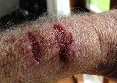 Homem culpa Apple Watch por lhe ter queimado o pulso (literalmente)