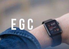 Apple Watch: tecnológica é processada por violação de patentes no ECG