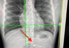 Criança de sete anos engole um Apple AirPod e é hospitalizada