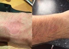 Apple Watch provoca irritações no pulso de alguns utilizadores